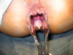 Гипертрофированный анальный сосок